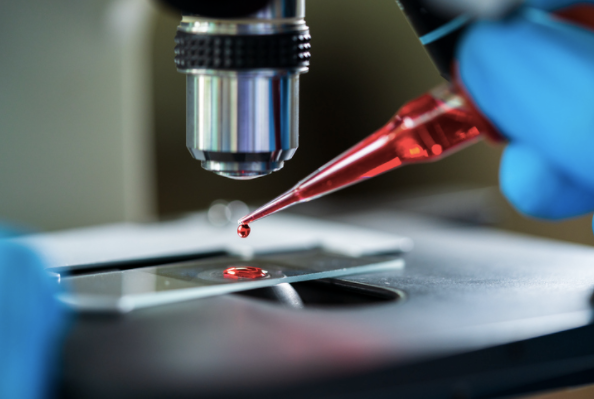 Blood sample on lab slide